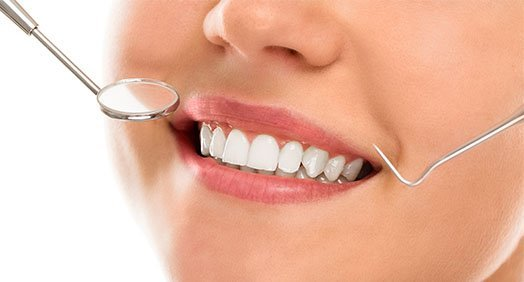 benefits of smile makeover Casula