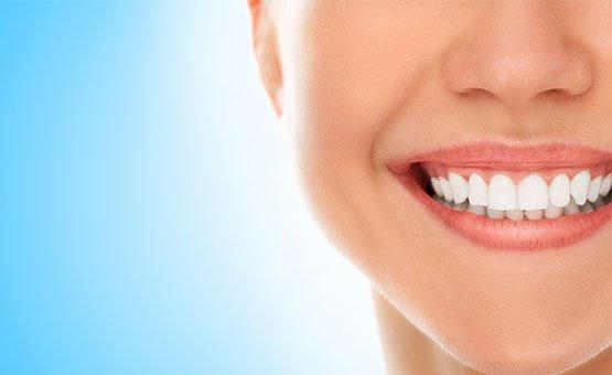 cosmetic-benefits-of-porcelain-fillings-casula