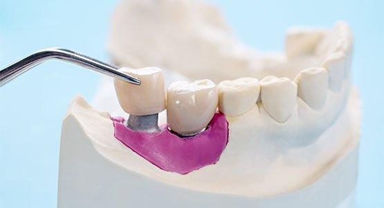 best cosmetic dentist Casula