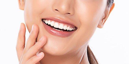 dental-bonding-casula