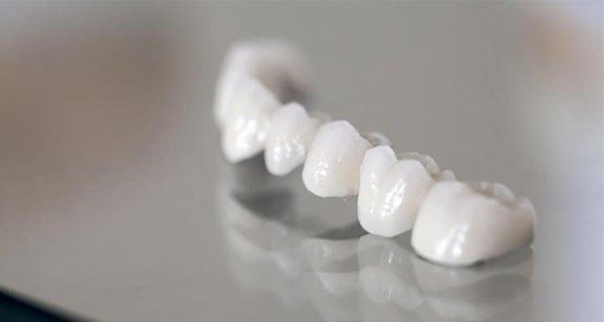 dental-bridges-blurb-casula