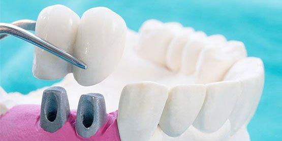 dental-crowns-blurb-casula