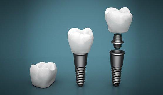 dental implants Casula