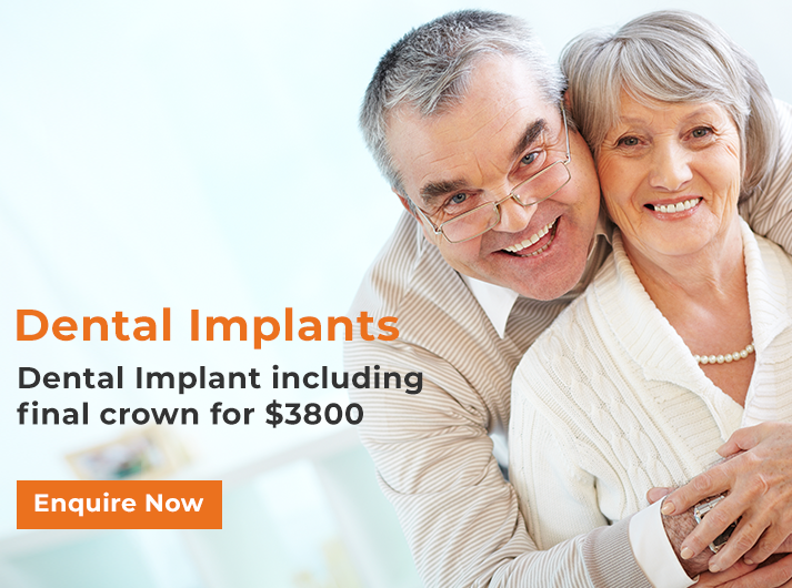 dental-implants-promotion-banner-home-casula