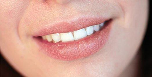 dry-mouth-treatment-casula
