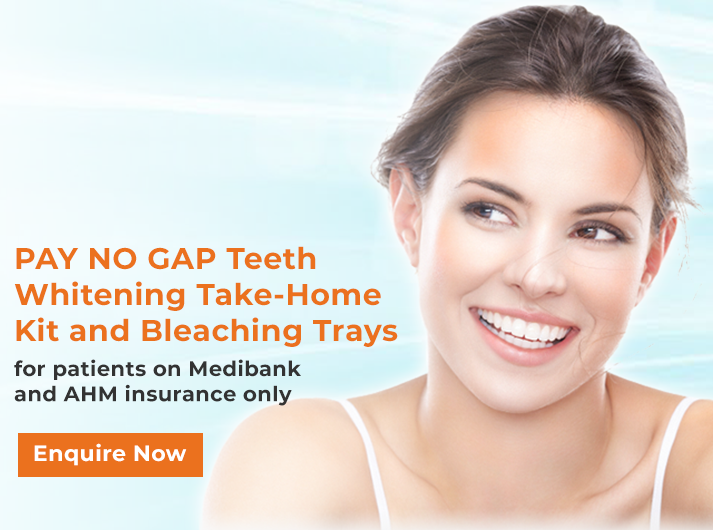 pay-no-gap-teeth-whitening-banner-home-casula
