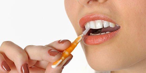 periodontal treatment Casula
