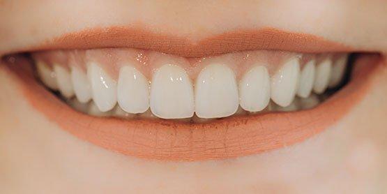 cheap cosmetic dentist Casula