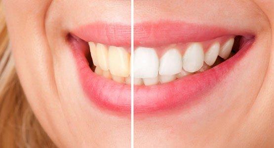 cosmetic dentist Casula