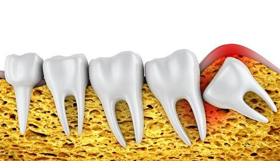 wisdom teeth removal Casula