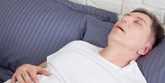 sleep-apnoea-casula