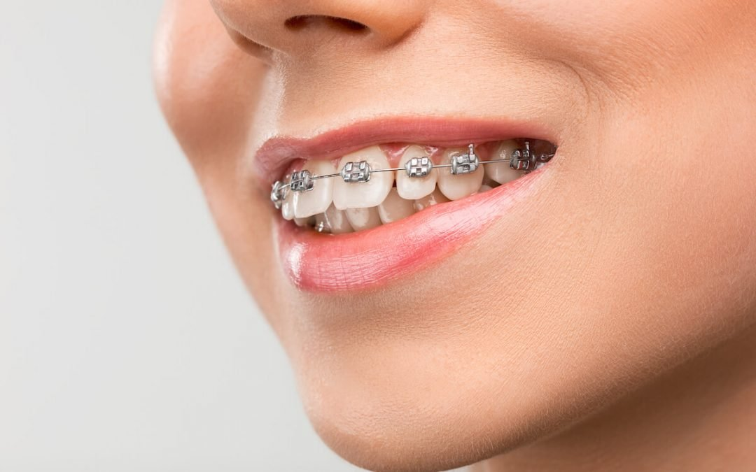 The Importance of Correcting your Overbite from Casula Dental Care